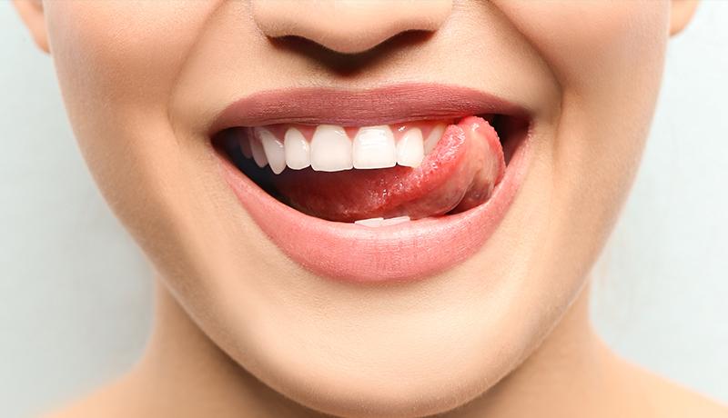 dentalhygiene_white-matta